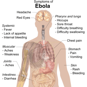 It Is Becoming Clear – We Are NOT Prepared For An Ebola Pandemic