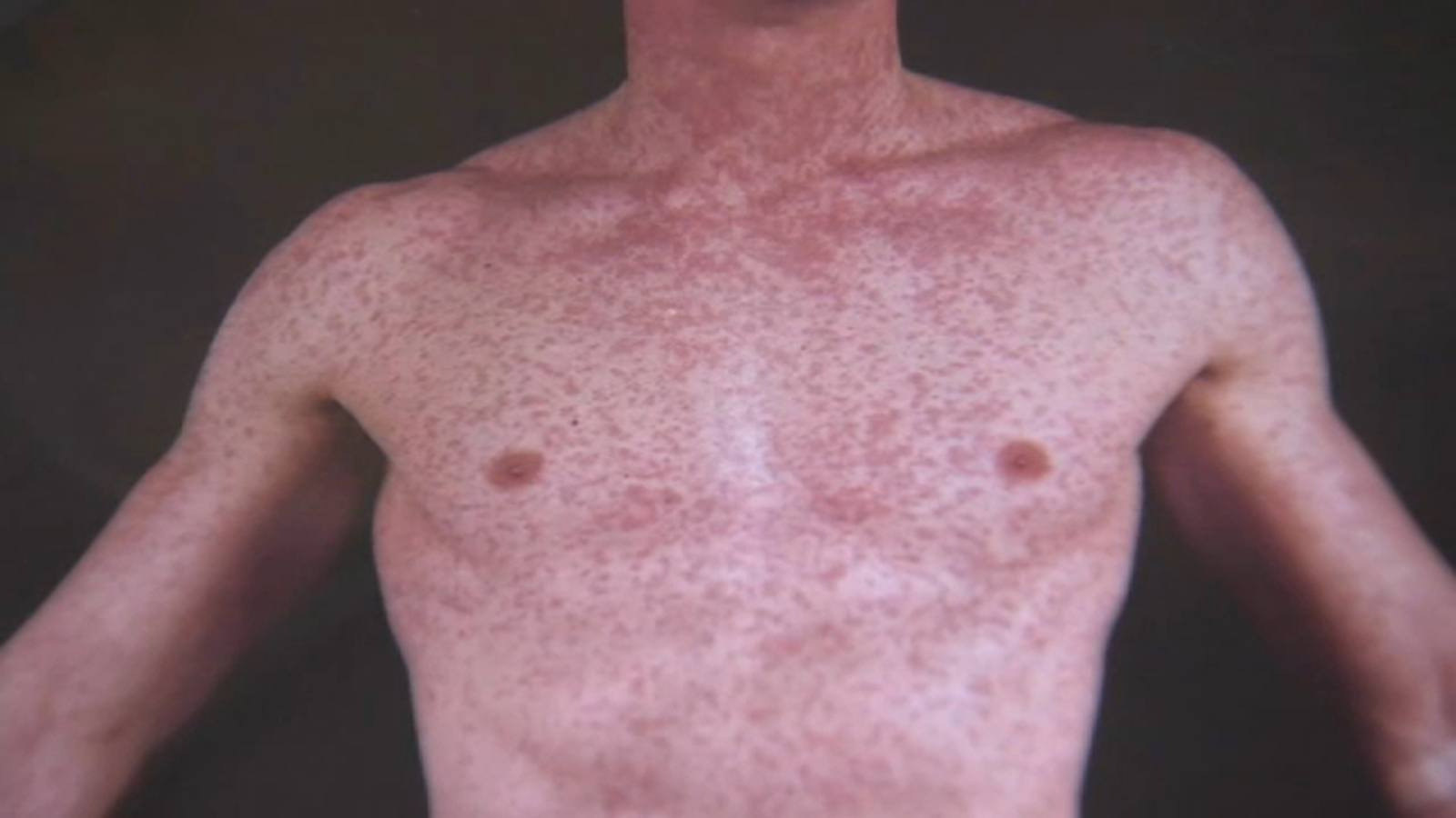 Los Angeles County health officials warn of possible measles exposure at CVS, Ralphs -TV