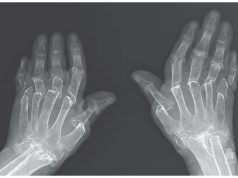 Woman's Common Condition Resulted In Rare 'Telescoping Fingers'