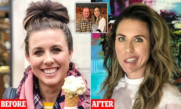 Nutritionist, 29, reveals she woke up one morning with a half-paralysed FACE