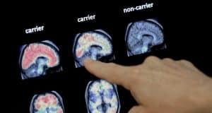 Drugs fail to slow decline in inherited Alzheimer's disease